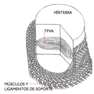Disco Intervertebral TFVA